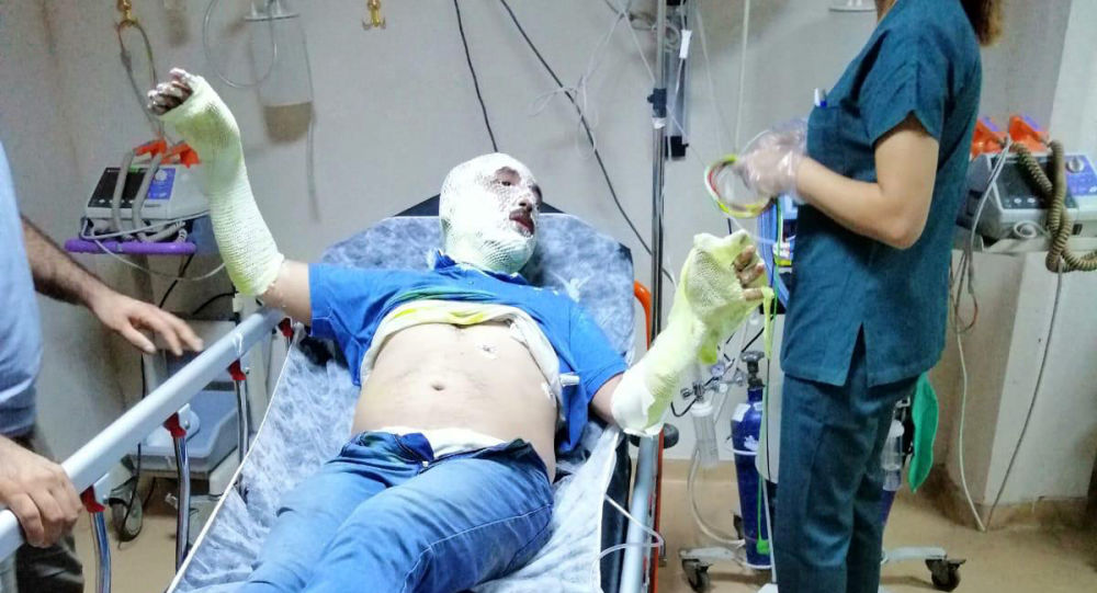 MHP İlçe Başkanı Ağca teknede çıkan yangında yaralandı