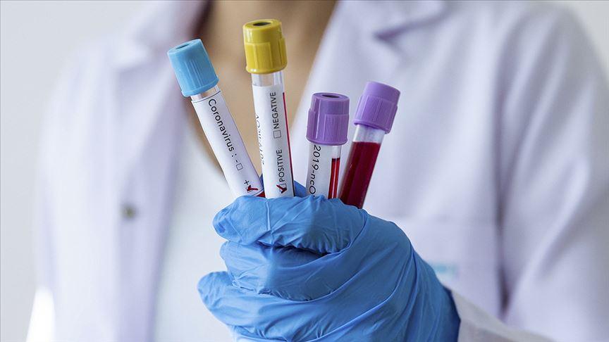 Türkiye'de koronavirüs kaynaklı can kaybı 4 bin 397'ye yükseldi