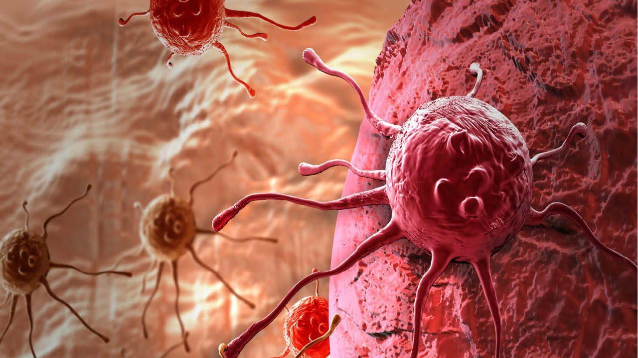 'Ağız kanseri en çok erkeklerde görülüyor'